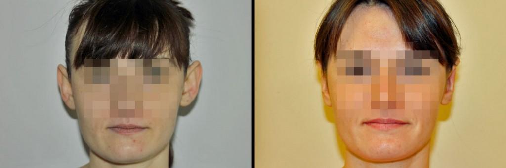 Korekta uszu - przed i po operacji