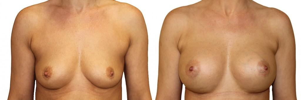 Przed operacją i po operacji powiększenia piersi u Dr Olender