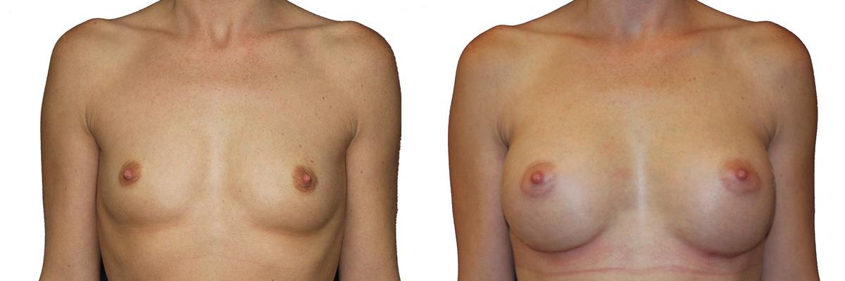 Przed i po operacją piersi - powiększaniem