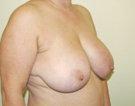 biust przed operacją podniesienia