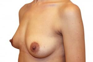 przed opracją powiększania piersi
