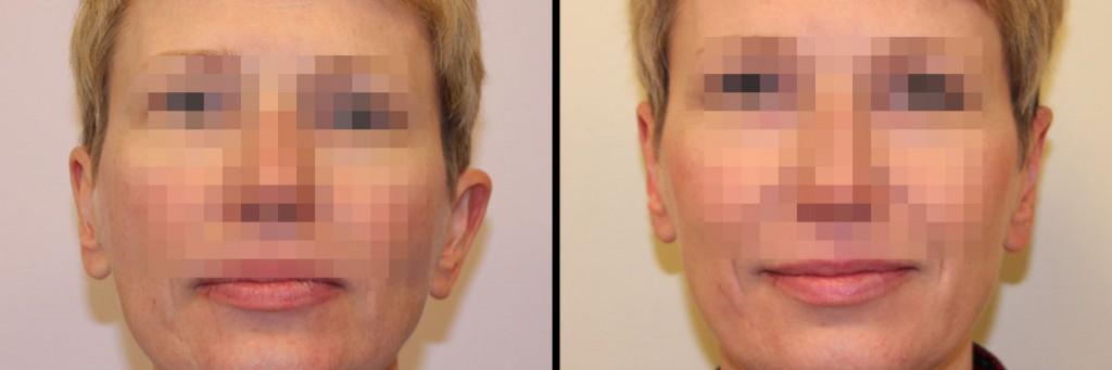 Przed i po operacji uszu w klinice Dr Olender
