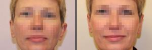 przed-operacjea-i-efekt-po-operacji-uszu
