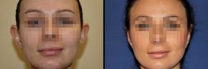 Odstające uszy przed operacja i efekt po zabiegu korekty uszu