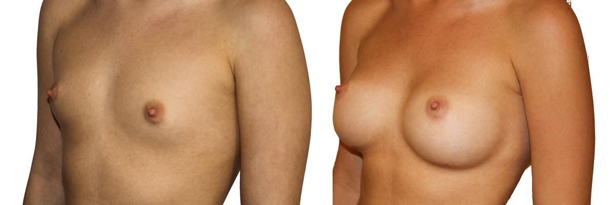 Mały rozmiar piersi i piękne, pełne piersi po operacji