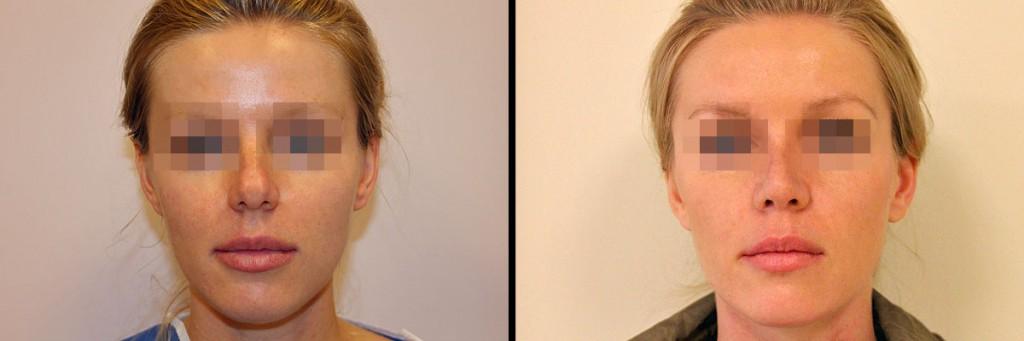 Zdjęcie przed operacją i efekt zabiegu korekcji nosa