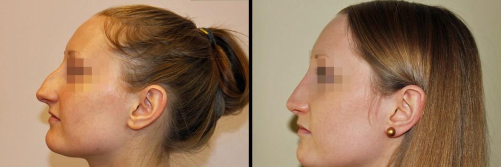 Nos przed zabiegiem i po operacji