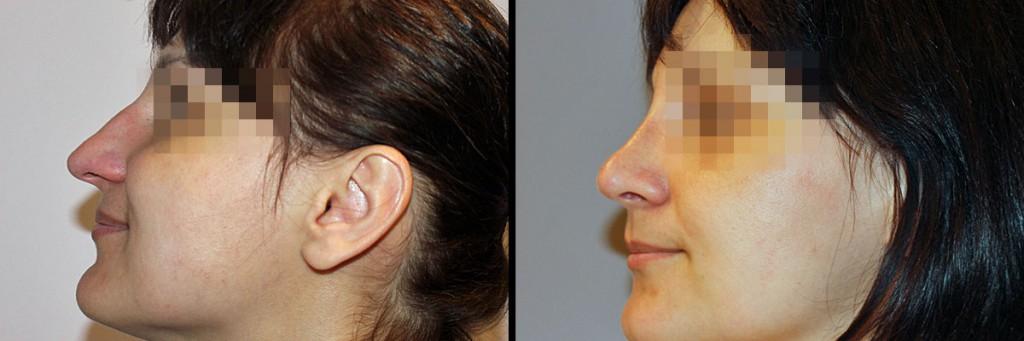 Twarz z profilu przed i po zbiegu operacji nosa