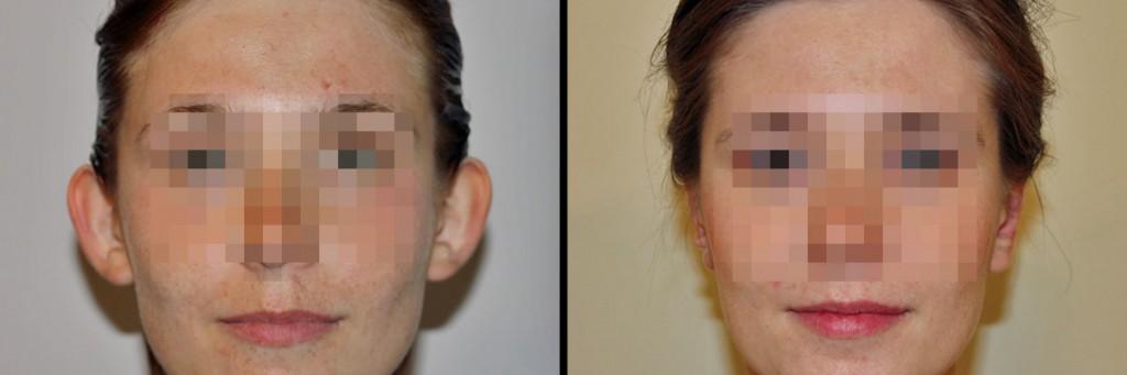Przed i efekt po operacji uszu w klinice D Olender