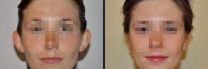 uszy-przed-i-po-operacji-w-klinice-dr-olender