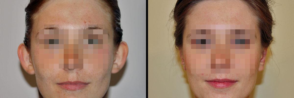 [Obrazek: uszy-przed-i-po-operacji-w-klinice-dr-olender.jpg]