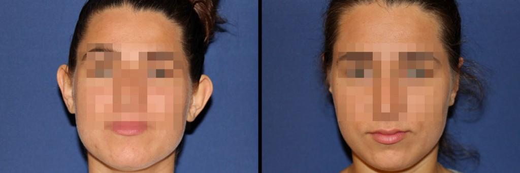 Przed i po operacji uszu