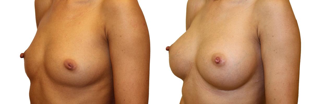 Piersi przed i po zabiegu - operacji powiększenia piersi.