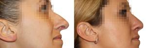 Zbliżenie nosa przed zabiegiem i po zbiegigu korekty nosa
