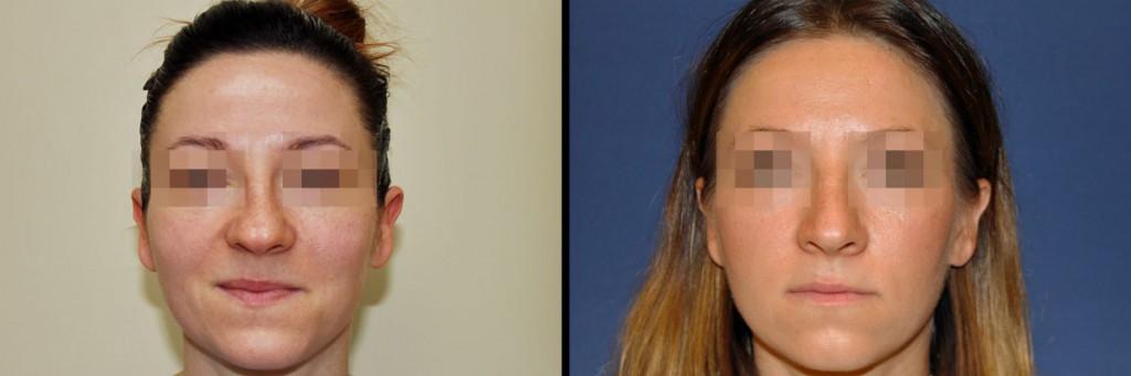 Kobieta - zdjęcie przed i po korekcji nosa
