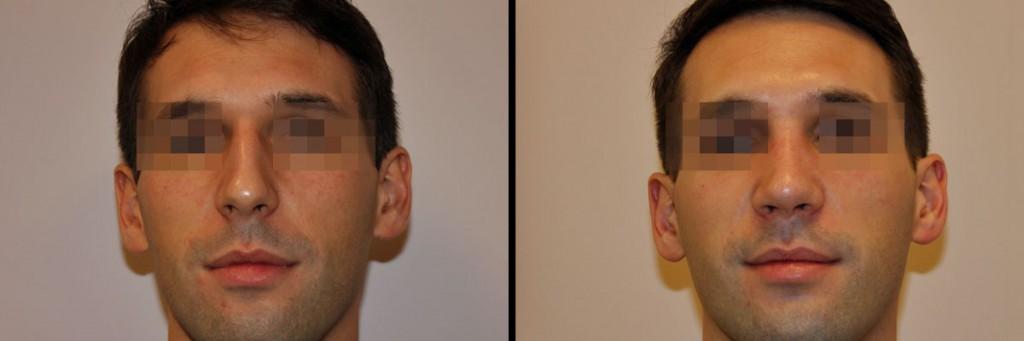 Twarz po operacji nosa w klinice Dr Olender
