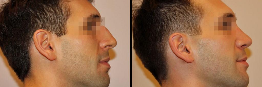 Mężczyzna po operacji plastycznej nosa