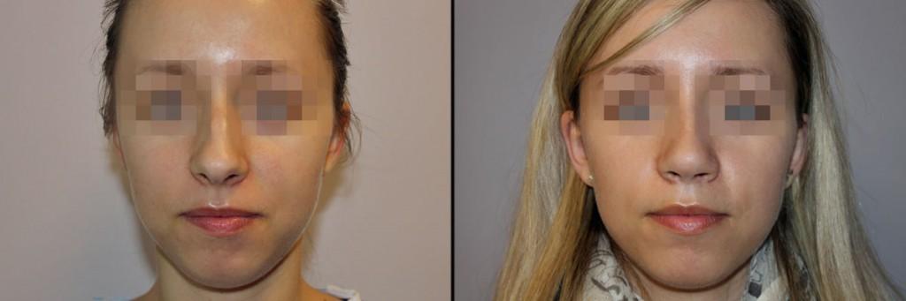Twarz przed operacja nosa i po zabiegu