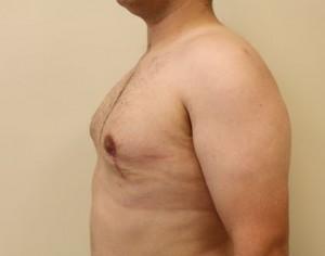 Efekt u pacjenta po ginekomastii