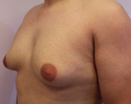 Pacjent przed zabiegiem ginekomastii