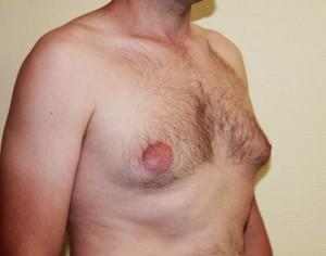 Powiekszone piersi u meżczyzny przed ginekomastą