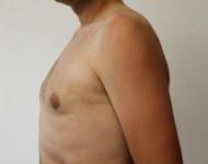 Pacjent po chirurgicznym leczeniu ginkomastii