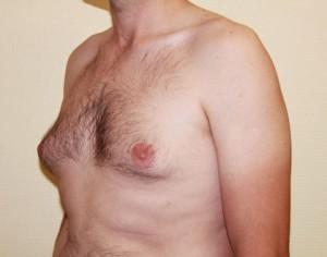 Przed operacją ginekomastii
