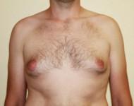 Mężczyzna przed operacją ginekomastii