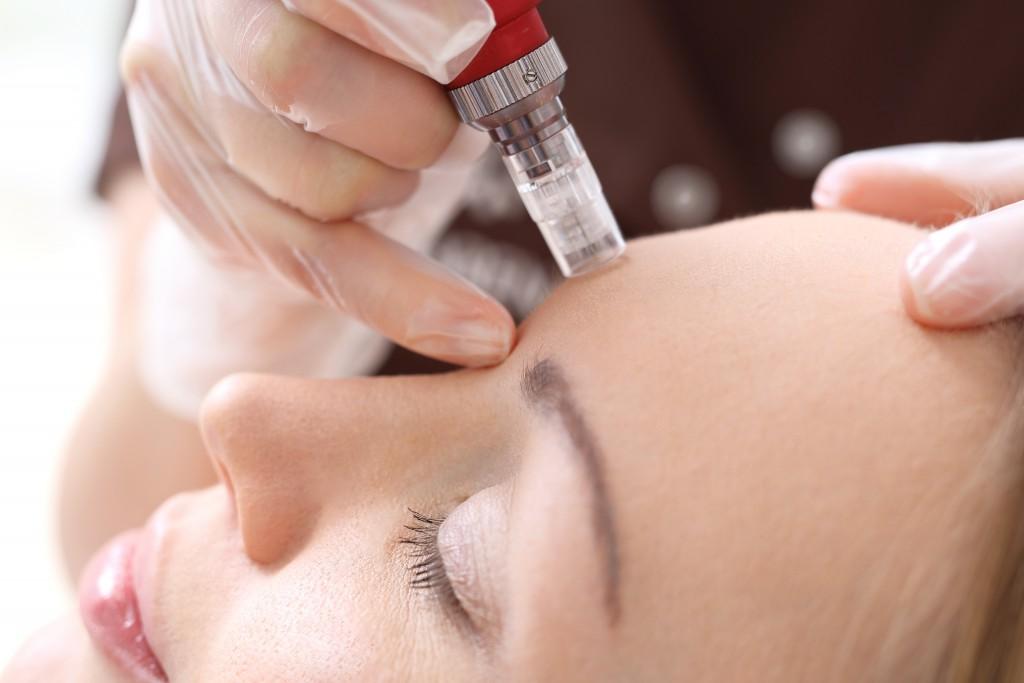 Kosmetyczka wykonuje zabieg mezoterapii igłowej na twarz kobiety